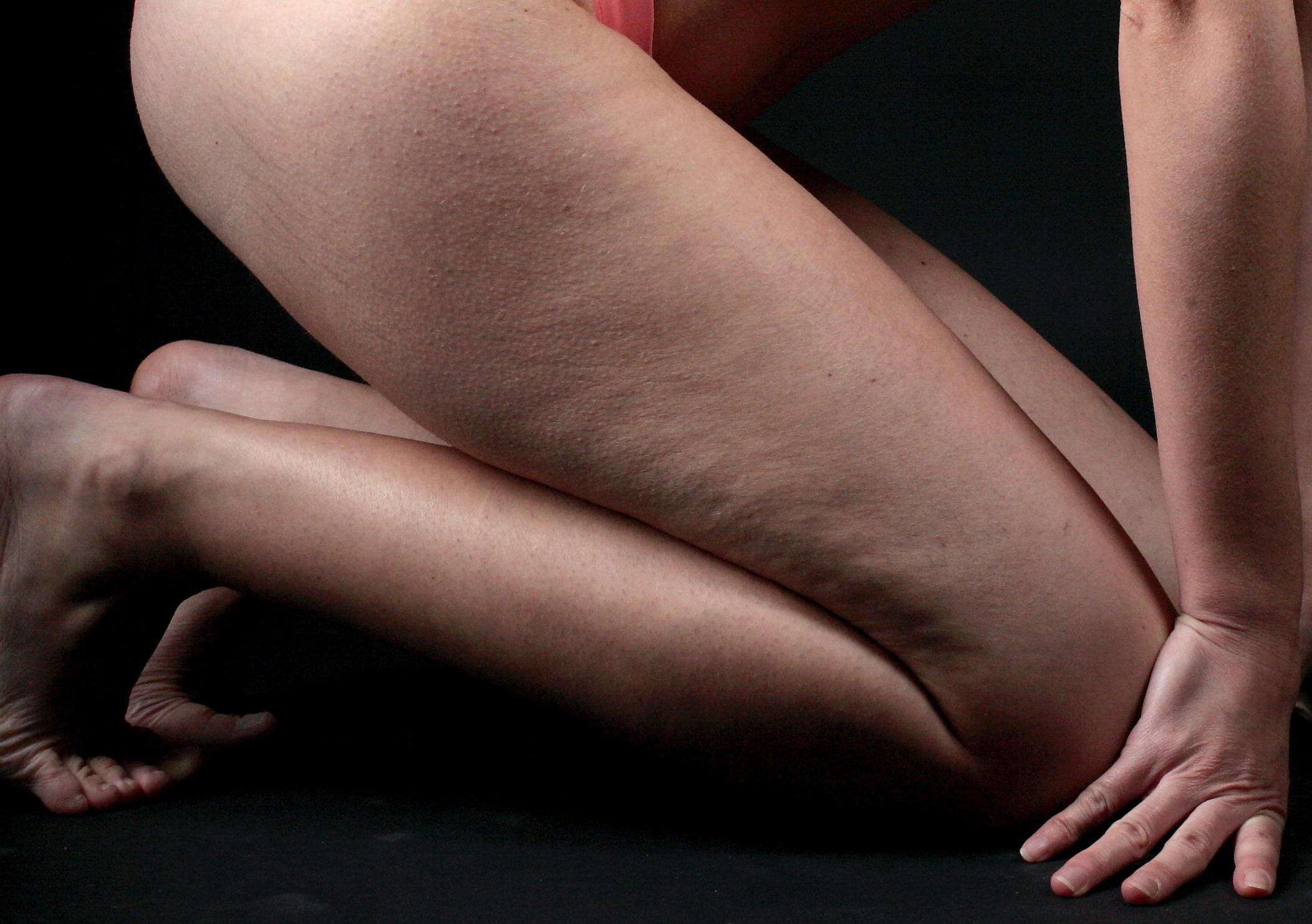 Come eliminare la ritenzione idrica sulle gambe